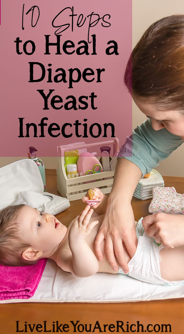 Lotrimin for yeast infection baby was